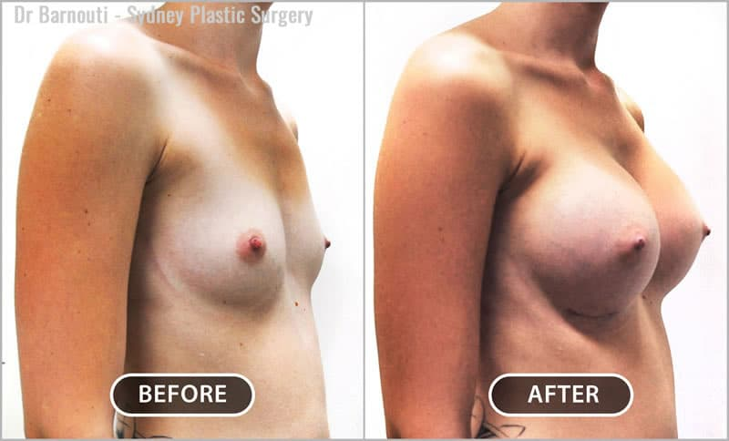 Breast augmentation with 350cc round implants; dual plane.