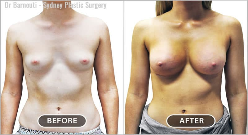 Breast augmentation with 320cc round implants; nice symmetry, upper pole fullness and cleavage.