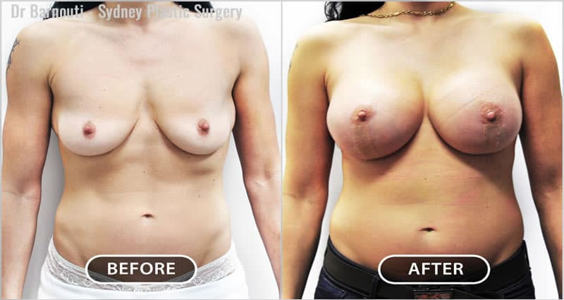 lift and augmentation surgery. Note the sharp cleavage and proportionate breasts.