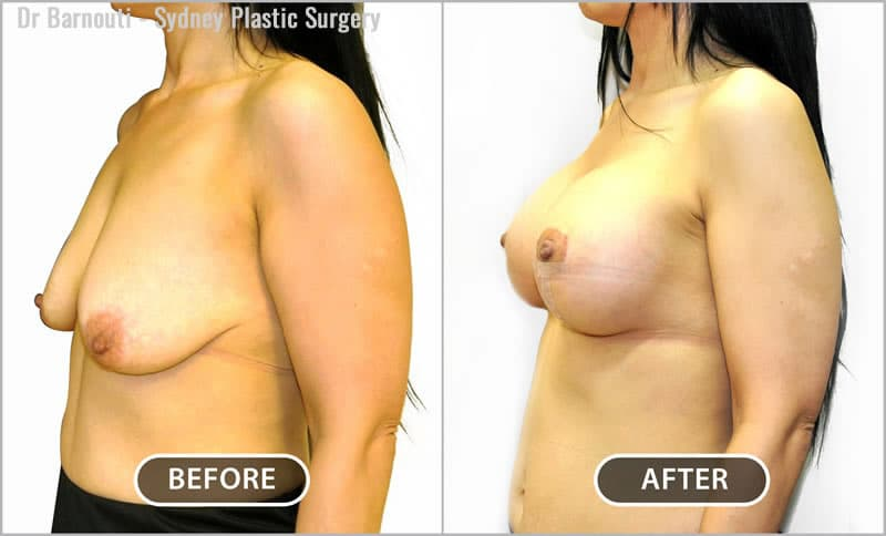Breast lift and augmentation surgery. This included repositioning of the nipples.