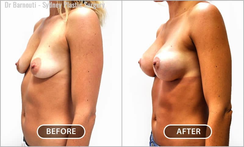 Natural breast lift and augmentation outcome.
