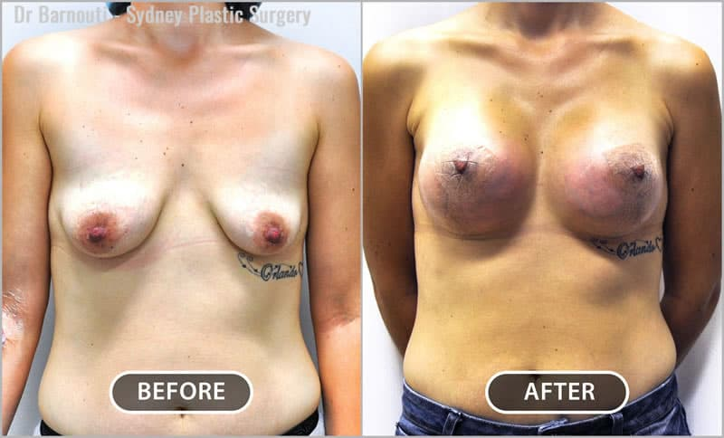 Many women choose to have a breast lift due to breast droop, caused by weight fluctuation, hormonal changes, pregnancy or breastfeeding.
