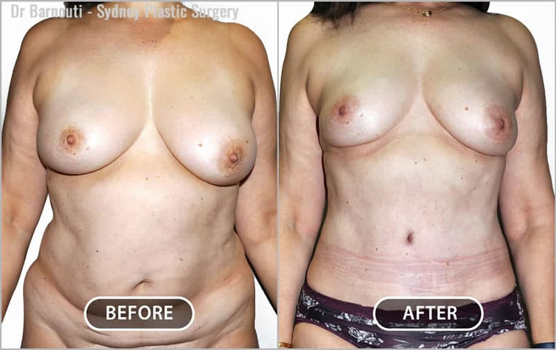 This patient underwent a tummy tuck and breast reduction by liposuction.