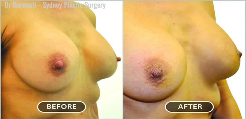 Before and after nipple reduction.