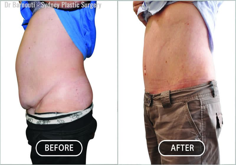This patient had a tummy tuck and liposculpture.