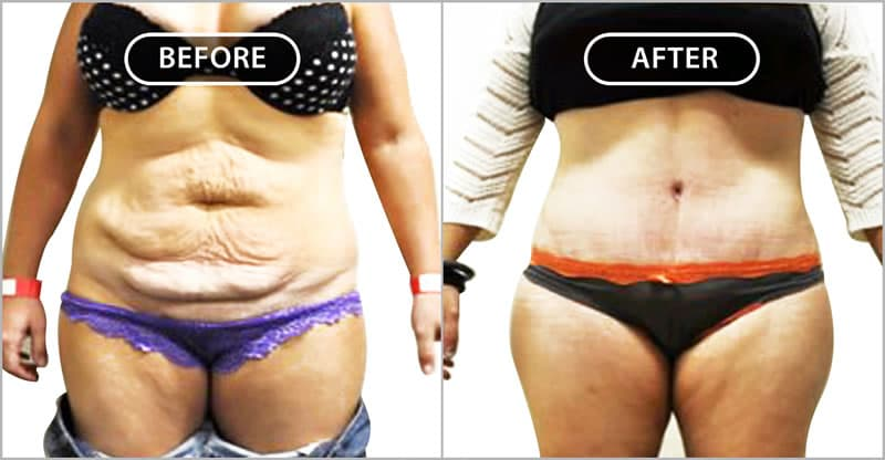 Notice the new small belly button, the waistline liposuction, the low-seated scar and the attractive midline groove. Notice that the scar is completely hidden by the patient's clothing.