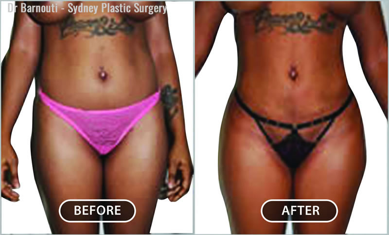 Liposuction can be focused on areas of need to obtain specified results. Notice the skin shrinkage after artistic liposculpture.