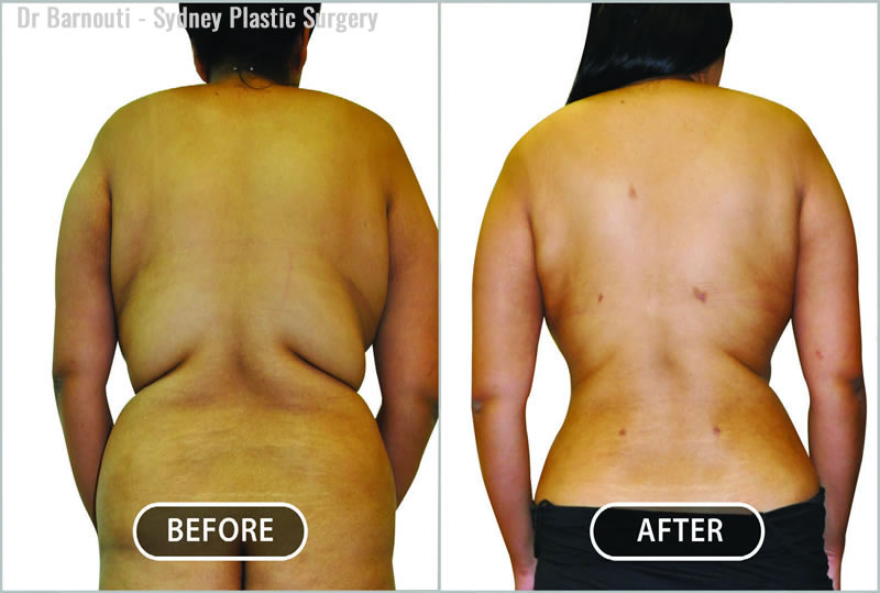This patient saw powerful results to the abdomen, waist area, back, hips, buttock, and thighs post liposculpture.