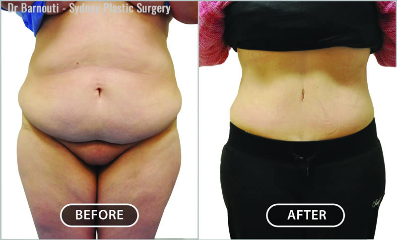 Post weight loss abdominoplasty.