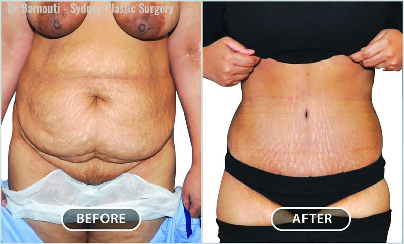 Extended radical abdominoplasty, liposculpture, pubic lift and umbilical reshaping.