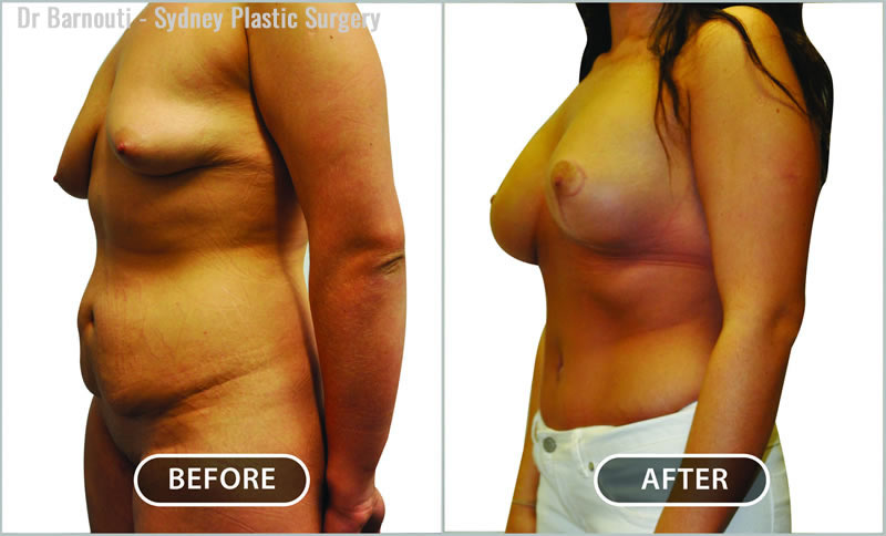Mummy makeover: tummy tuck, liposuction and breast surgery.