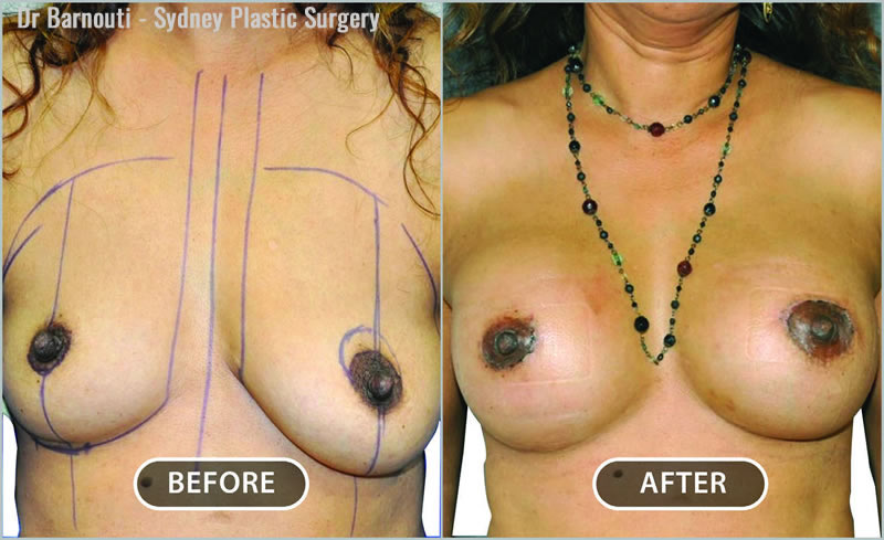 Breast augmentation through a small scar on the boarder of the areola. The left side required a mini lift to achieve better symmetry.