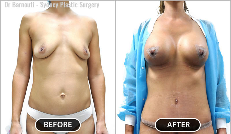 Attention to detail produces an artistic cosmetic abdominal unit, a small umbilicus, a short pubis and low scar.