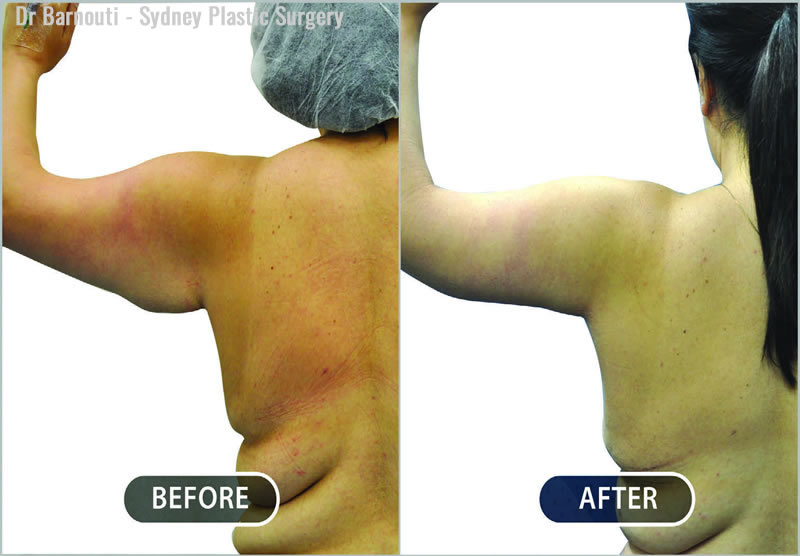 Arm reduction and liposuction.