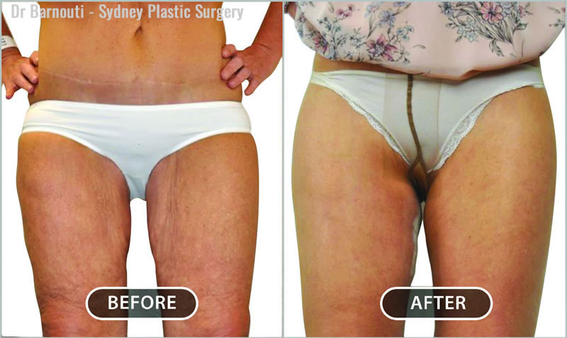 Thigh lift surgery: excessive tissue is removed and the skin tightened.