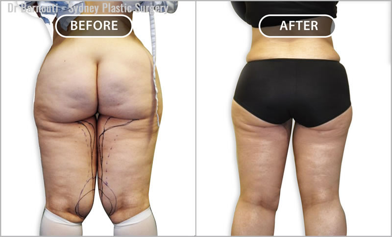 This patient had a thigh lift and liposuction.