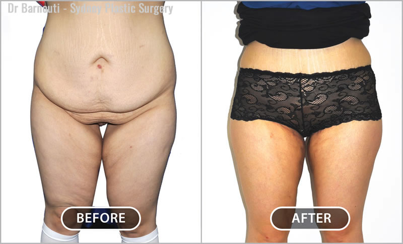 This patient had abdominoplasty and thigh lift surgery.