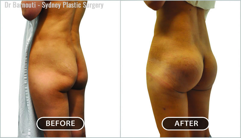 Buttock implant surgery using 280cc round implants.