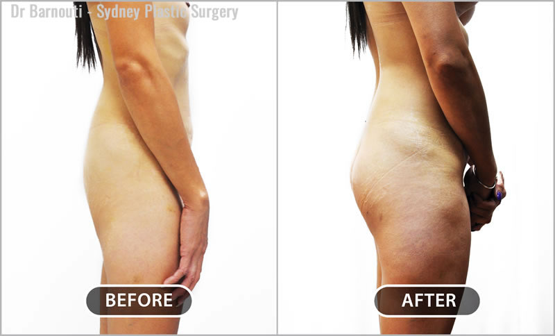 Buttock augmentation surgery, using 270cc round buttock implants.