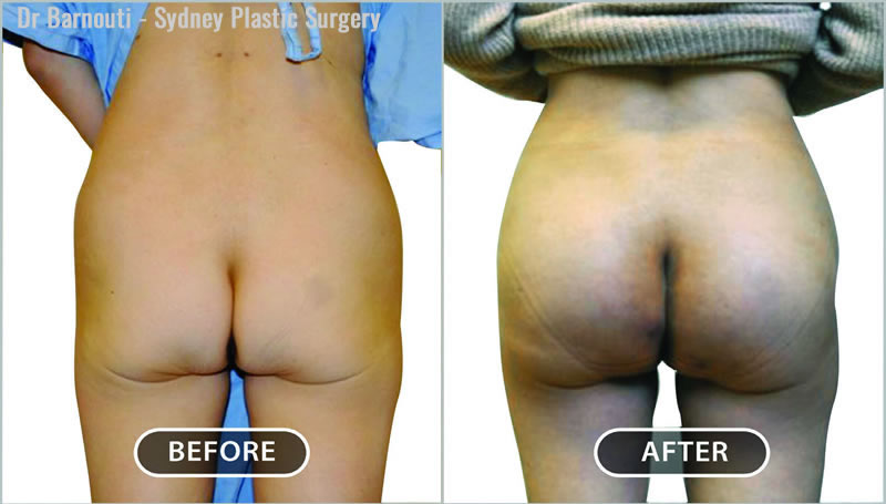 These are before and after photos of a 330cc round buttock implant procedure.