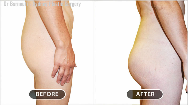 Buttock augmentation using 350 cc round implants.