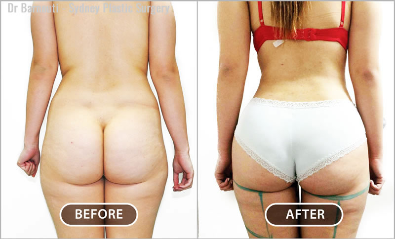 Notice the desirable gap in the inner thighs, the narrow waist, and the fully rounded buttocks that this patient has achieved after receiving her Brazilian Buttock Lift.