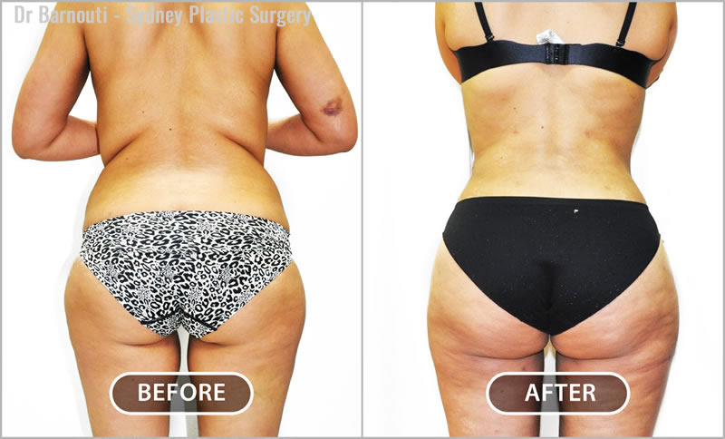 Liposuction of the inner thigh and back area define the buttocks and waistline.