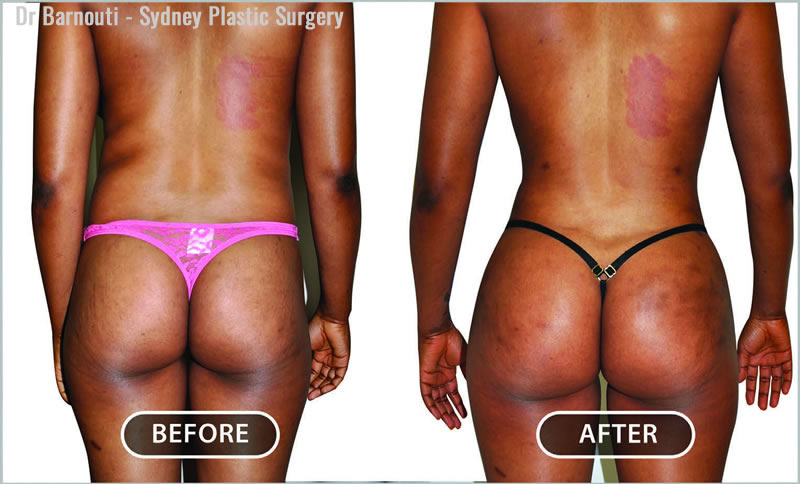 After the Brazilian Buttock Lift, which involved a fat transfer to the buttocks and liposculpture of the waistline, flanks and inner thighs.