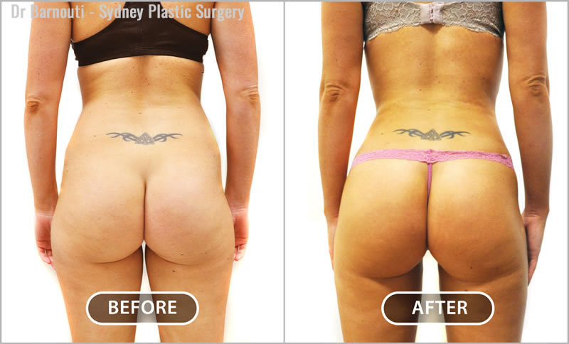 Brazillian Buttock Lift and posterior recontouring. Notice the desirable inner thighs gap, narrow waist and fat injected buttocks.
