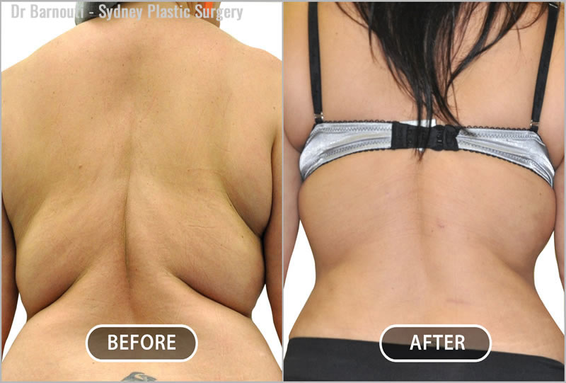 This patient had her entire back liposculptured, producing an hourglass figure.
