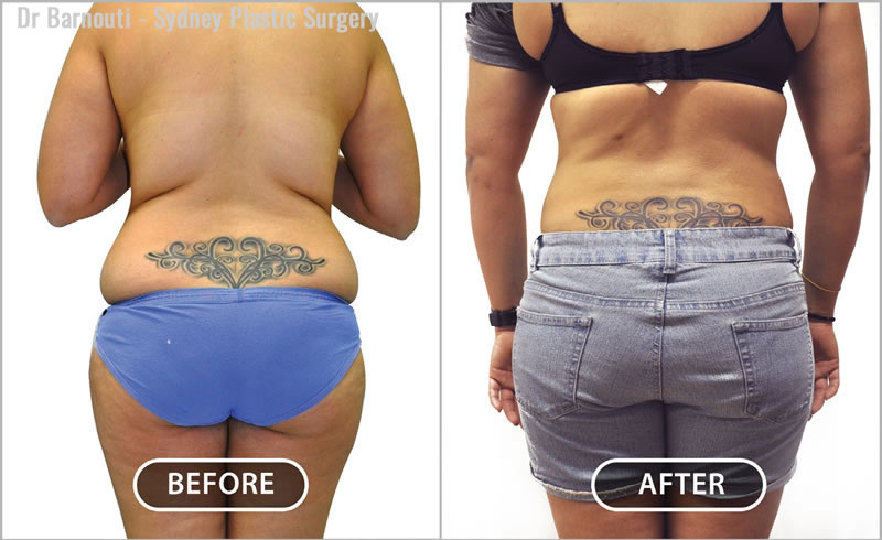 Notice how the skin folds contracted and softened by aggressive liposuction above and below the crease.