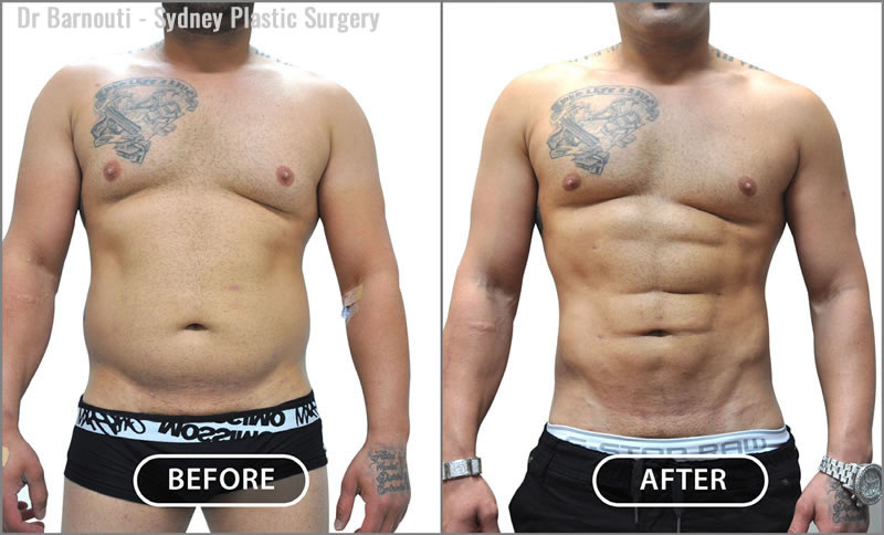 Before and after a six pack abs surgery and chest liposculpture.