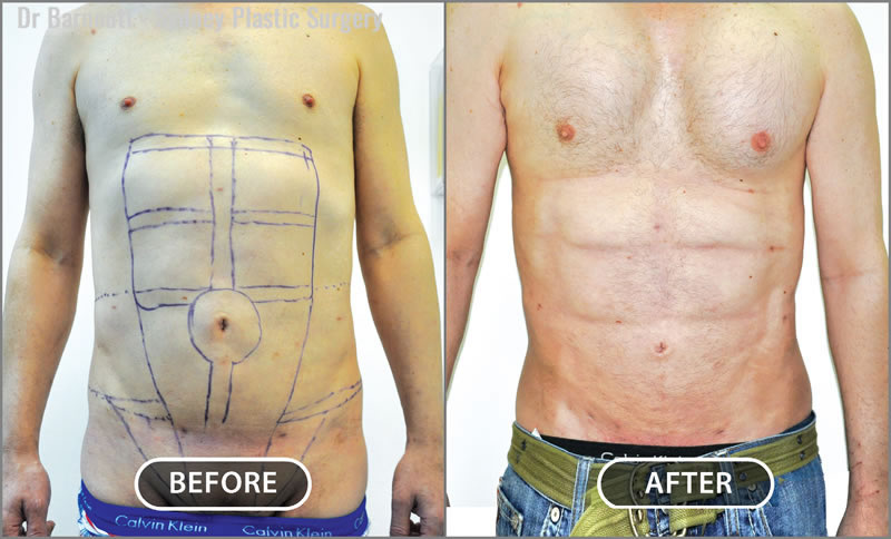This patient had abdominal etching and pectoral implants.