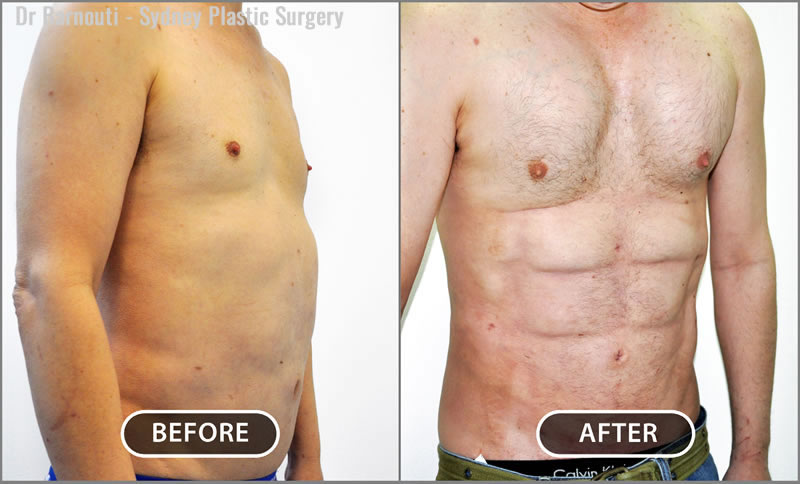 Notice the well defined six-pack created by liposculpture.