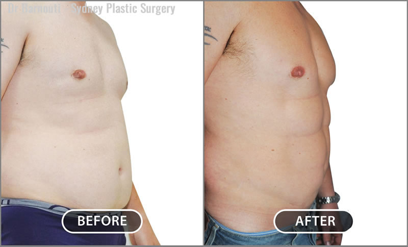 The after picture is the patient seven years after having an abdominal etching. This patient has maintained nice results.