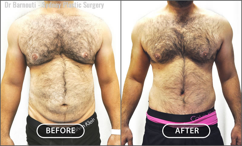 This patient underwent a full abdominoplasty and chest contouring liposculpture.