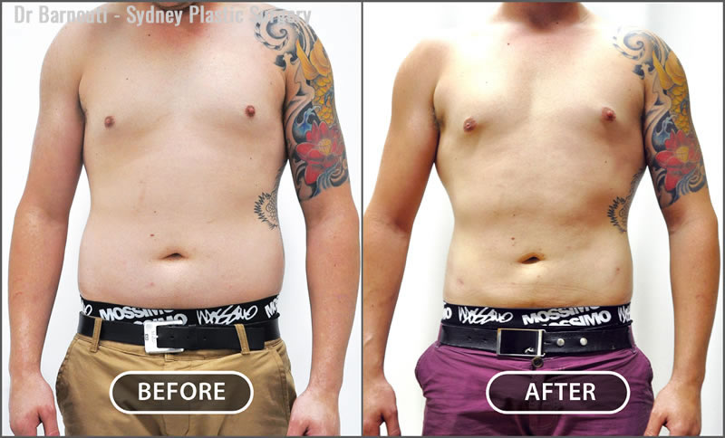 Some patients prefer a V shape. This can be achieved by liposculpturing the abdomen, hips, love handles and chest to create a V-shaped figure.