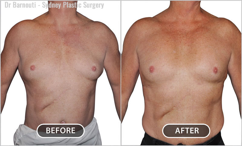 This patient had a pectoral enhancement with implants.