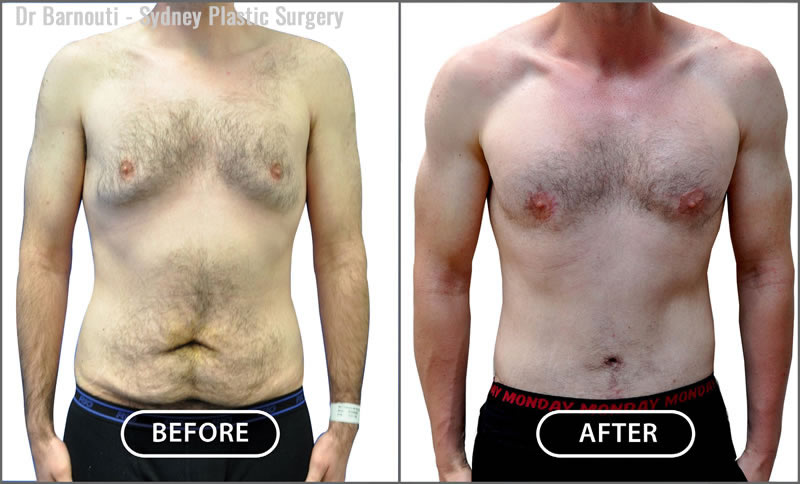 This is a patient after receiving a tummy tuck and pectoral implants.