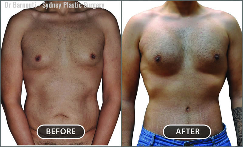 Tummy tuck and pectoral implants.
