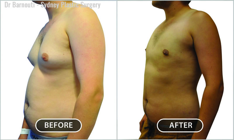 Male breast reduction and chest liposuction.