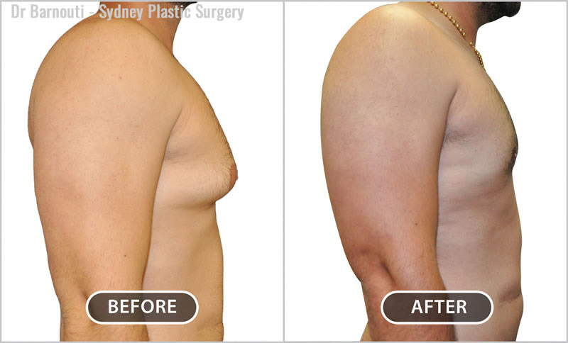 Before and after the removal of breast and fatty tissue.
