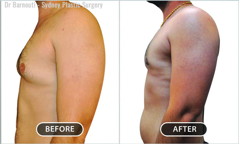 Liposuction is used to remove the fatty tissue and gynecomastia surgery to reduce the breast tissue.