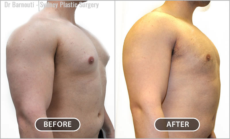 Removal of breast and fatty tissue mainly from the lower half of the chest.