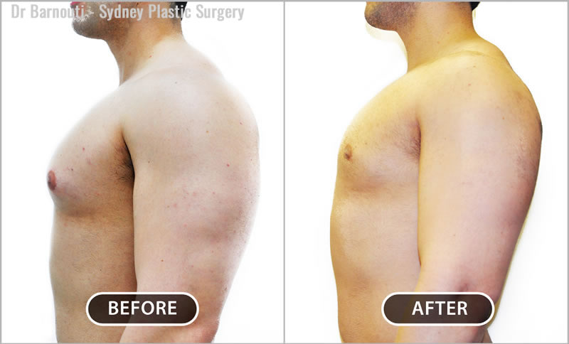 This patient had male breast reduction surgery.