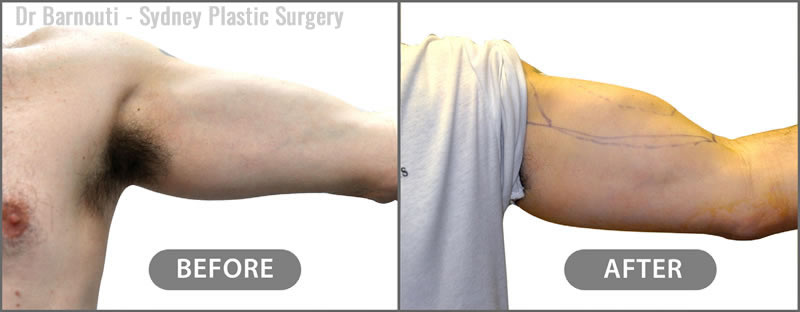 The photo is directly before and two hours after enhancing the patient's biceps and triceps with fat injections.