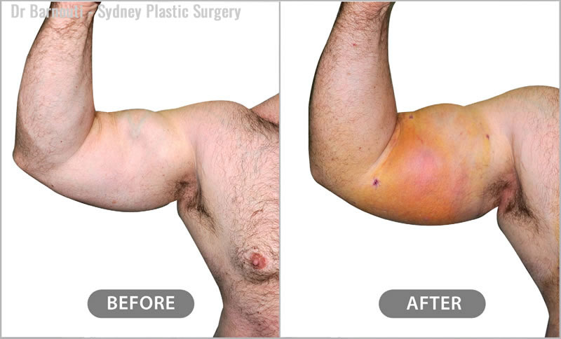 In the after photo, the injected biceps and triceps are bruised and swollen. The patient has maintained 70 per cent of the injected fat.