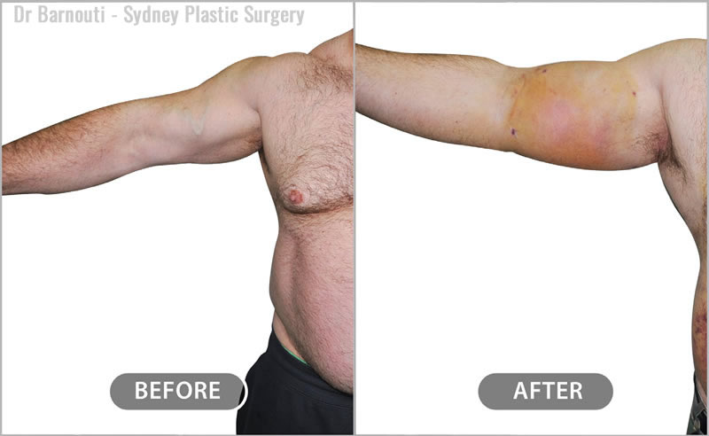 Before surgery, the patient had a noticeable contour deformity in the biceps area. One hour after fat injection to biceps and triceps to correct the deformities.