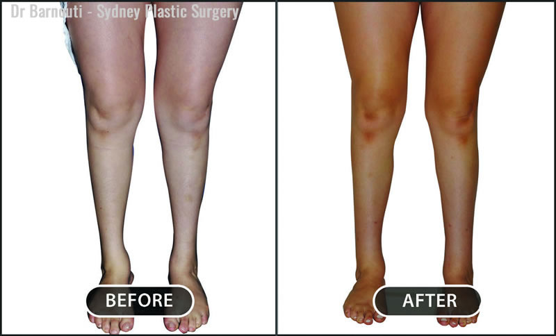 This is the patient before and after her calf and ankle enhancement with fat injections.