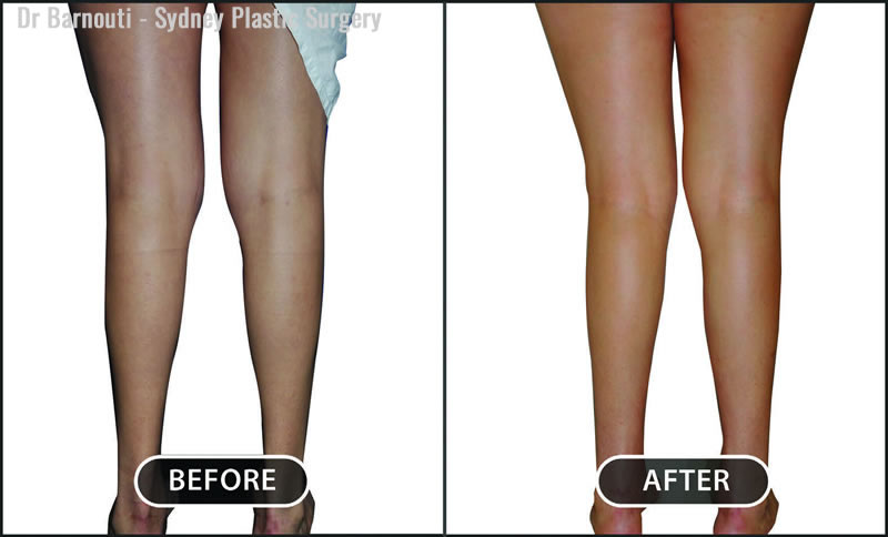 For patients born with muscle atrophy of the lower extremities, fat injections are the best choice for enhancement.